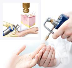 Криодеструкция в дерматовенерологии