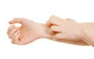 Общая характеристика атопического дерматита