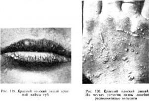 Симптомы и локализация красного плоского лишая