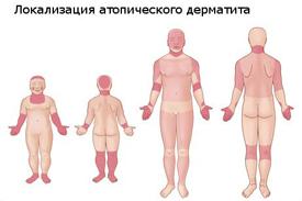 Гормональные мази экземы